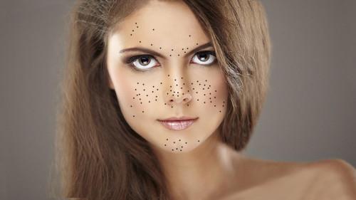 Красивая девушка с чёрными точками на лице