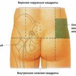Как сделать укол в ягодицу в домашних условиях, чтобы не было больно и осложнений – инструкция от врача