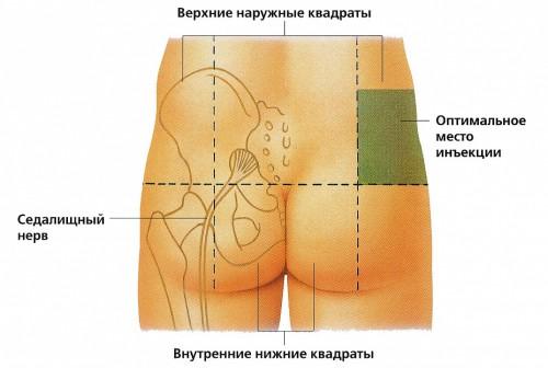 Схема инструкция куда нужно ставить укол